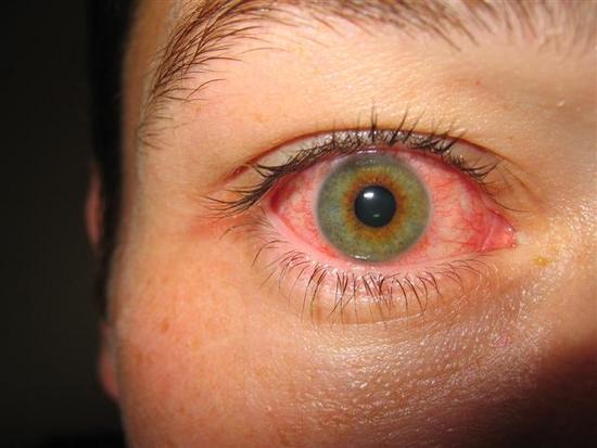 oogontsteking allergie